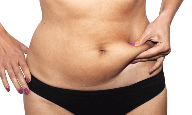 fat-freeze-vs-liposuction