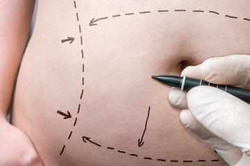 Как подтянуть кожу на животе после похудения