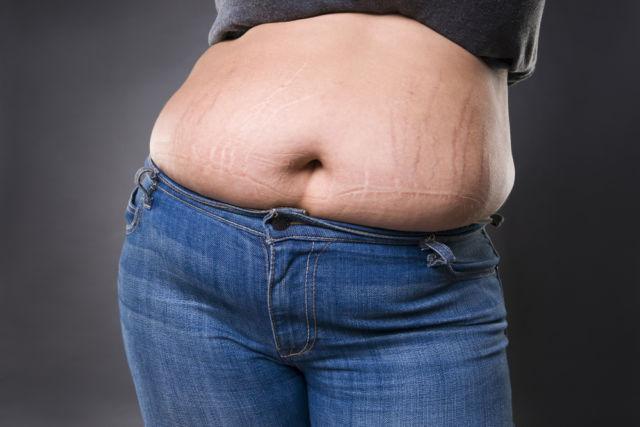 как убрать обвисший живот после похудения пластика