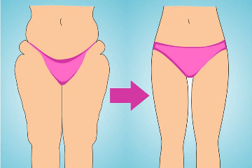 Как сделать между ног дырку. Отвечаем на вопрос: как убрать жир между ног и сделать просвет между бедрами?
