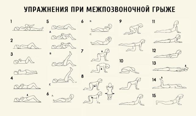Лечебный комплекс упражнений при грыже поясничного отдела позвоночника