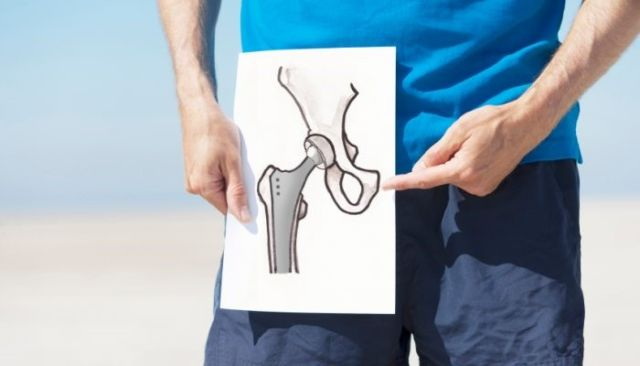 Изображение - Упражнения после эндопротезирования тазобедренного сустава дома Paren