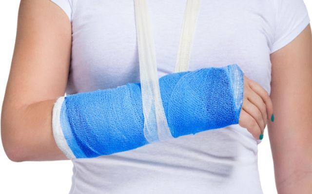 Изображение - Упражнения после перелома лучезапястного сустава со смещением dt_150702_broken_wrist_800x600
