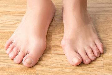 Массаж и упражнения при вальгусной деформации стопы у детей