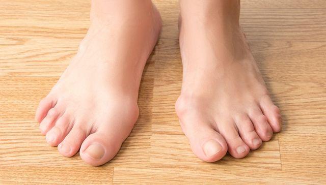 Лфк при смещении суставов стопы коксартроз тазобедренного сустава 2 степени лечение лфк