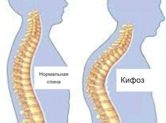 Гимнастика при кифозе грудного отдела позвоночника - лечение упражнениями
