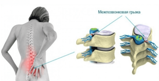 Обезболивающие упражнения для поясницы при грыже