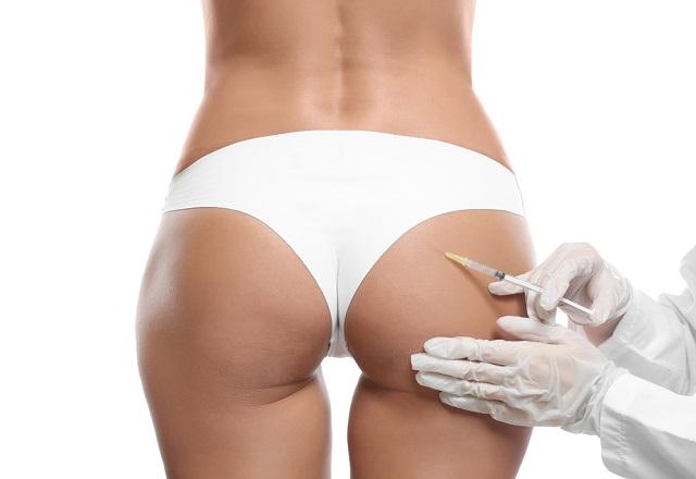 Уколы стройности: что такое липолитики для похудения и как они помогают вашей фигуре