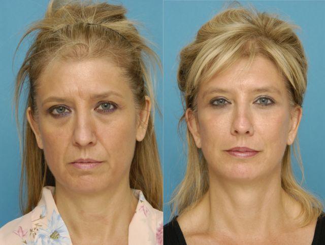 Кавитация лица: до и после