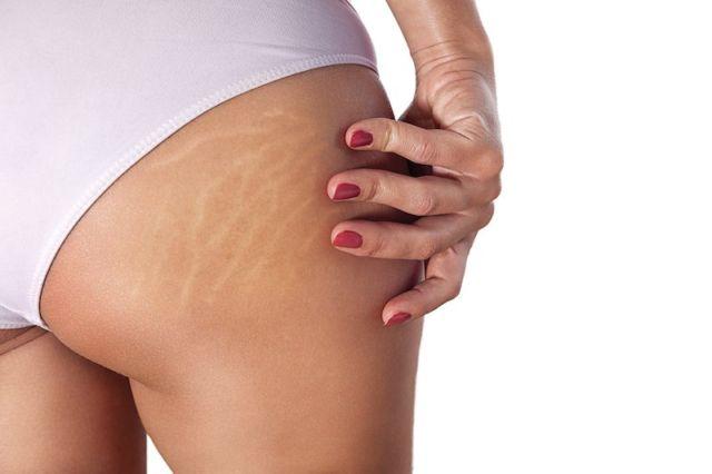 Image result for Как убрать растяжки на коже: процедуры и средства